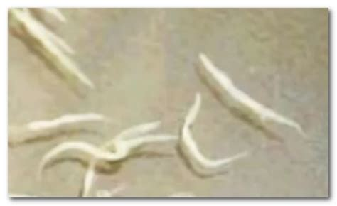 Small White Worms In Stool by Worms In Human Pictures Types Symptoms Treatment