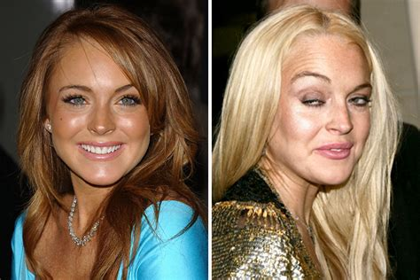 Lindsay Lohan To Team Up With Heroine In Williams Screenplay by 20 Shocking Photos Of Before And After Drugs 1