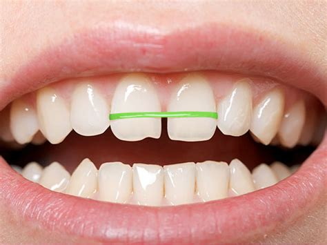 How To Make Braces With Paper - uab news brace yourself diy orthodontics can cost