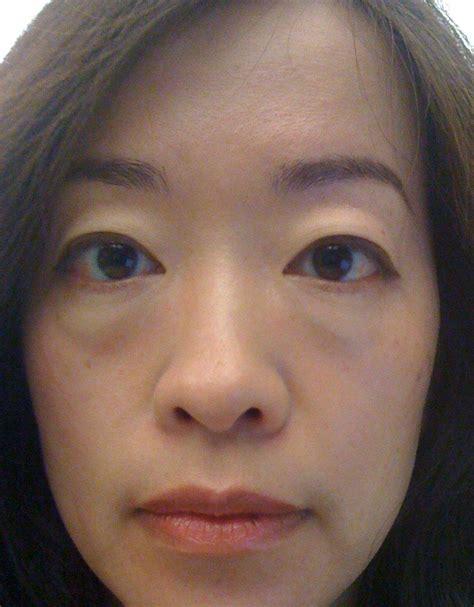 swollen eye image of swollen eye