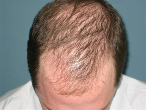 men losing hair three of the most common hair breakage causes omics publishing group various types of hair loss