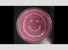 How to Interpret MacConkey's Agar Bacterial Growth Medium ... Mac