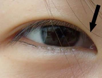 occhio interno epicanto