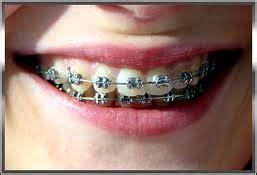 Dental Equipment Perlengkapan Behel Gigi kawat gigi behel