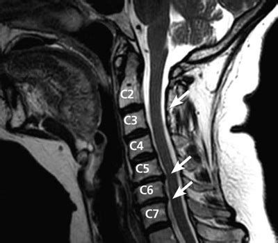 Spine After Section by The Importance Of Diagnostic Studies For Personal Injury Cases