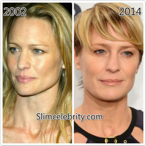 robin wright nose job robin wright penn plastic surgery and botox injections