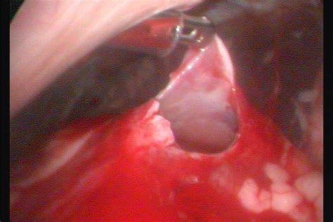 golden retriever crowthorne laparoscopic pericardial window operation performed at kynoch vets yateley kynoch