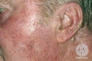 dermis actinic keratosis maladie de bowen image