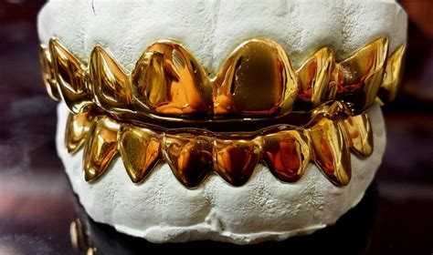 10k Solid Yellow Gold Custom Fit Real Gold Grill Grillz