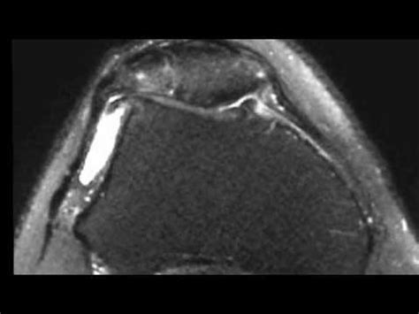 condropatia femoro tibiale interna corps etrangers et arthrose f 233 moro patellaire genou et