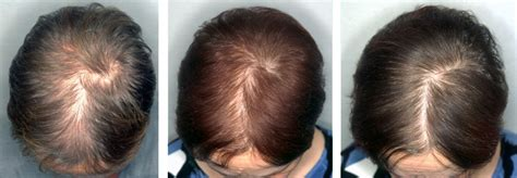 before and after photos alopecia antrogenetic women contact 187 hair nail