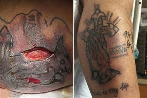 tattoo infection before after man dies after ignoring advice to wait for two weeks