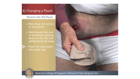 colostomy ileostomy changing a pouch