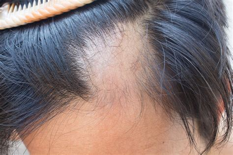 Hair Dryer Effects On Scalp essential oils for hair loss balance me beautiful