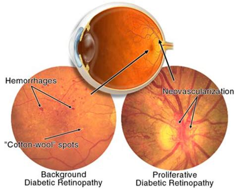 Can Diabetes Cause Blindness cure for diabetes diabetes mellitus as a cause of blindness