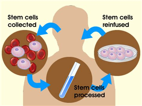 stem cell treatment now stem cell treatment now some alternative why can t we use our own stem cells to heal our bodies