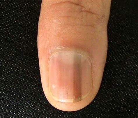 dark line on fingernail why does a brown line appear on a fingernail quora