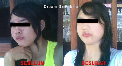 Herbal Malam 5gr pemutih wajah