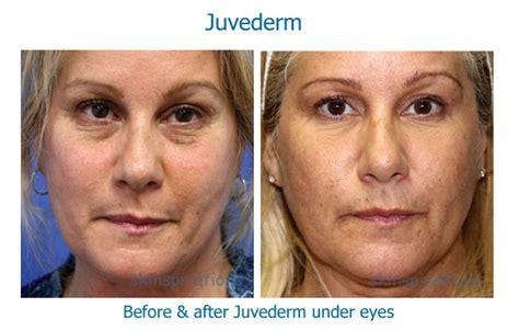 juvederm hair styles juvederm under eyes reviews hairsstyles co
