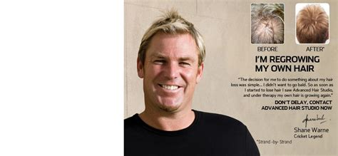 shane warne hair transplant advanced hair studio hair fiber advanced hair studio