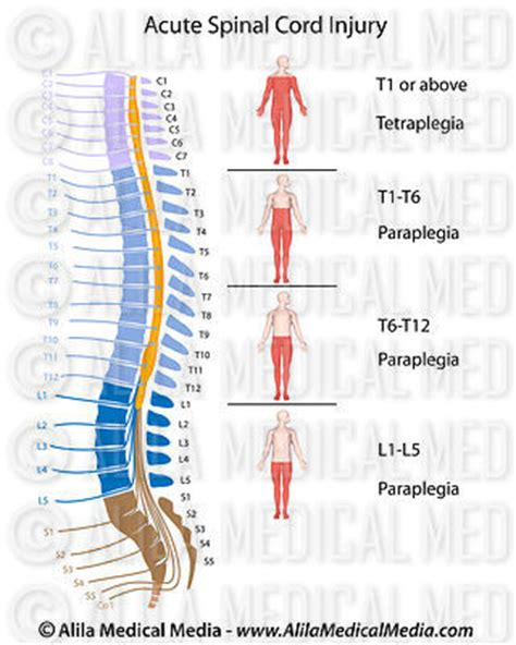 spinal cord injury diagram alila media brain and nervous system images