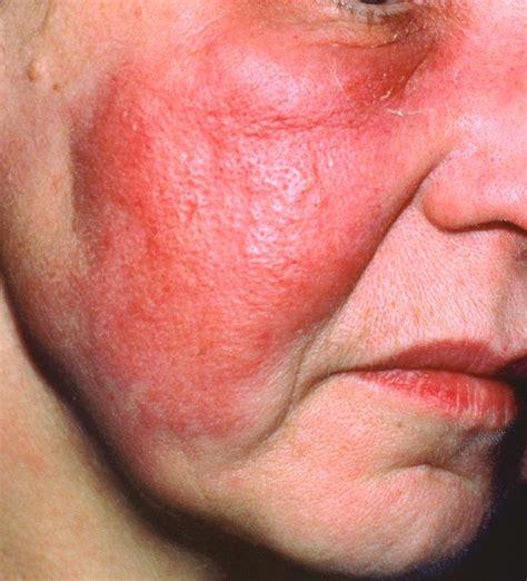 antibiotics for skin infection choosing an antibiotic for skin infections what s best