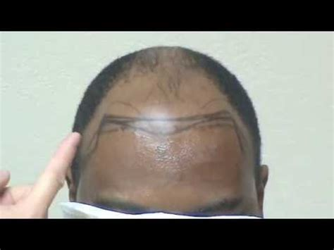 afro receding hairline bay area hair transplant black african receding hairline