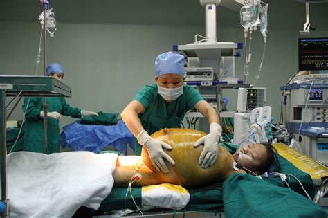 c section preparation girl 11 has 15kg tumour removed during marathon 8 hour