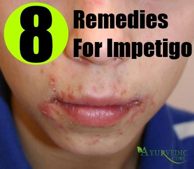 impetigo herbal remedies treatments and cure