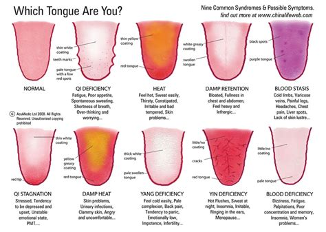 healthy tongue color all about tongue health