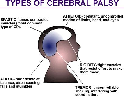 types of cesarean section uterine rupture vbac c section cerebral palsy