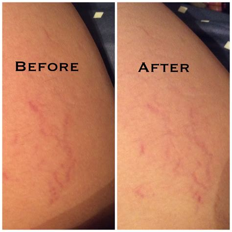 tattoo removal cream reviews blog 8 removal reviews permanent