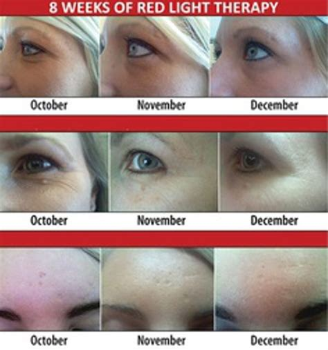 beauty angel red light therapy 7 best images about red light therapy on pinterest what