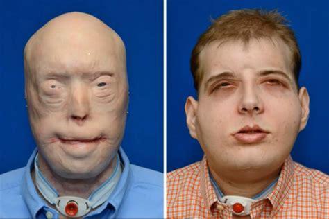 el rostro de un transplantaron el rostro de un bombero en estados unidos