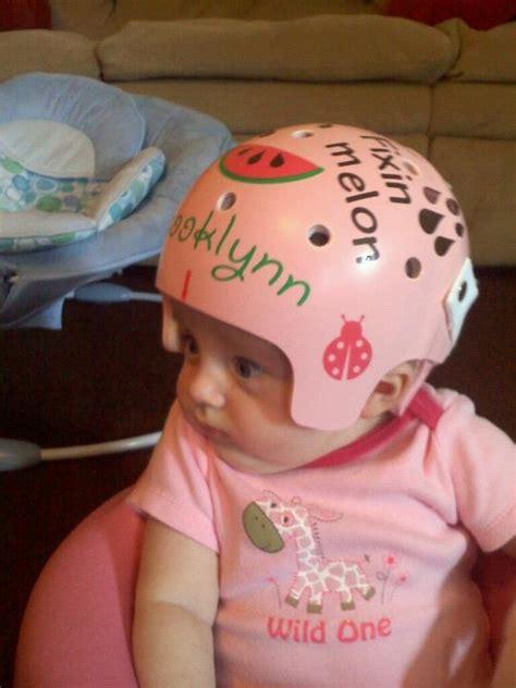 helmet design for babies 22 best brachycephaly and plagiocephaly images on pinterest