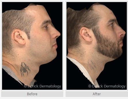orlando tattoo removal 29 best images about laser removal on