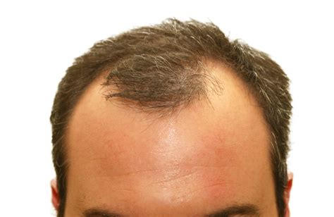 top  natural hair loss treatment  men  simple remedies