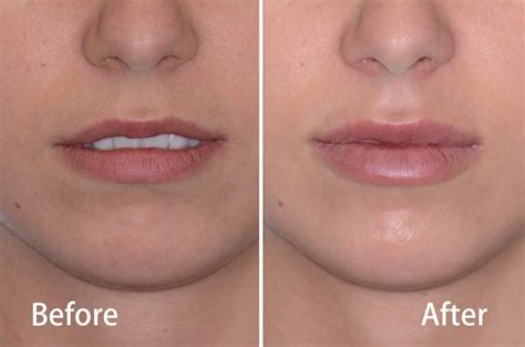 juvederm 174 fillers cosmetic surgery dr antipov