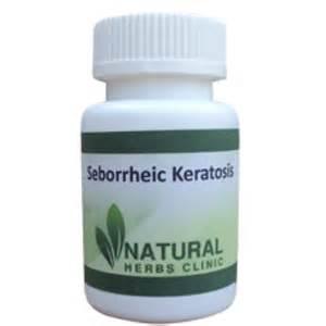 seborrheic keratosis home treatment home remedies for seborrheic keratosis