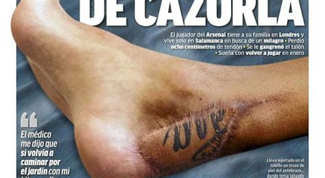 arsenal star santi cazorla almost his foot to gangrene
