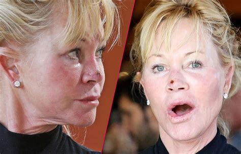 scab on s nose melanie griffith steps out with scab on nose