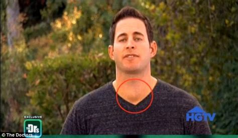 tarek and christina el moussa house popular hgtv presenter diagnosed with cancer and saved by