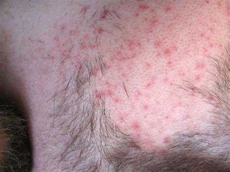 waxing rash ftw
