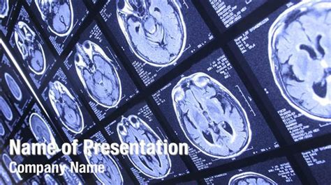 powerpoint themes free download x ray famous free radiology powerpoint template is a free ppt