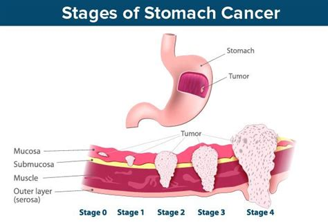 stomach cancer symptoms questionnaire aids symptoms stages bing images