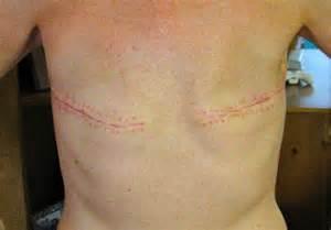 rocki s rock n blog mastectomy photos without reconstruction