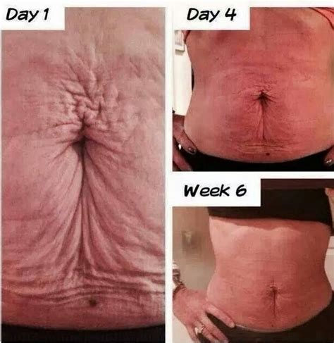 how to tighten loose skin on stomach after c section 1000 images about tighten loose skin on pinterest texts