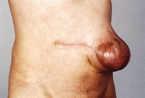 Abdominal Hernia Surgery Pictures