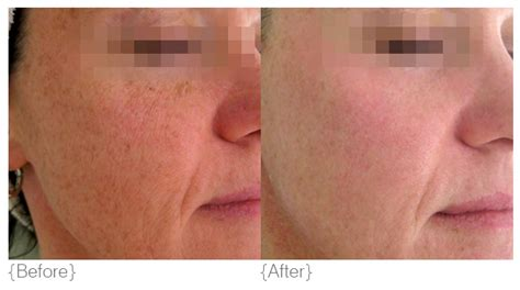 before and after pictures of pigmentation on skin pigmentation