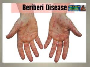 blindness can be caused by a deficiency of sonu academy deficiency diseases text